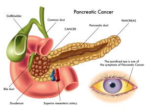 рак на панкреаса