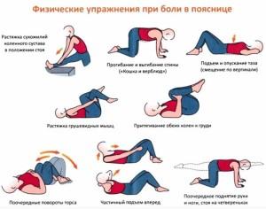 радикулит упражнения