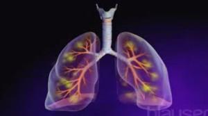haemorrhagic pneumonia