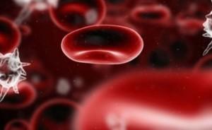 Вероятността от инсулт се увеличава от дефицита на желязо в кръвта