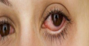 Левкемия и кръвоизливи в очите