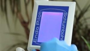 Една от възможните причини за дегенеративните заболявания и рак са кореновите канали - на снимката съвременна техника за лечението им