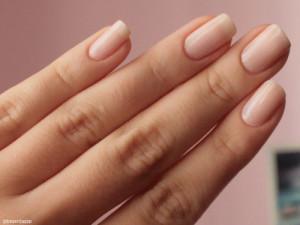 гъбички по ноктите на ръцете
