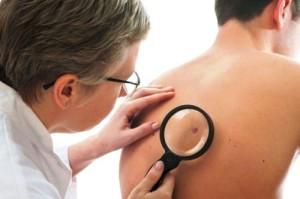 симптоми при рак на кожата