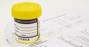 Точно как се лекува белтък в урината?