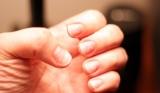 деформирани нокти
