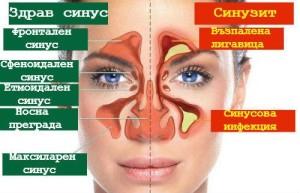 При синузит се получава възпаление на синусите с инфекция