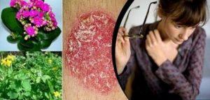 Най-ефикасните билки и начини за лечение на псориазис