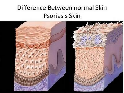Разликата между нормална кожа и болна от псориазис кожа