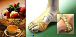 Лечение на подагра с билки и изпитани рецепти от народната медицина