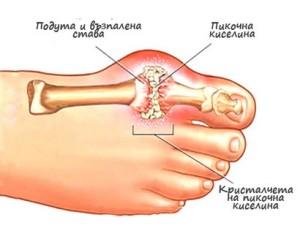 При подагра са засегнати предимно пръстите на краката