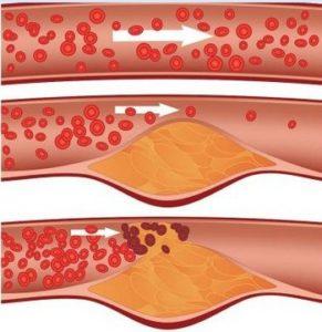 Увреждане на кръвоносните съдове от атеросклерозата.