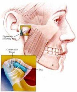 Нарушения в темпоромандибуларната става причиняват болка в ухото.