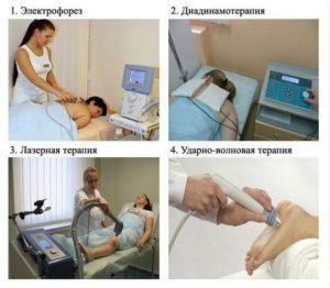 Физиотерапия - процедури за шипове.