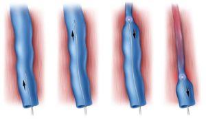 Лечение на разширени вени с лазер - EVLA.