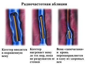 Радиочестотна аблация за разширени вени.