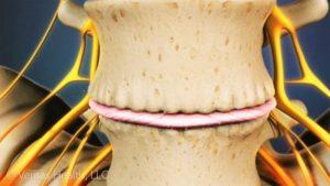 Лумбални шипове - дегенерация на гръбначния стълб.