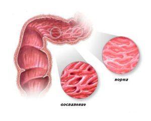 Болестта на Крон е хронично възпаление на чревната лигавица и чревната стена.