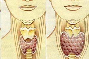 Здрава и болна щитовидна жлеза при хипотиреоидизъм.