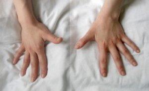 Ревматоиден артрит - хронично възпаление на ставите.