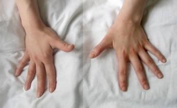 Лечение на ревматоиден артрит с народни средства и хранене