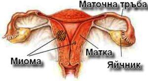 Туморът миома се развива в мускулната тъкан на матката.