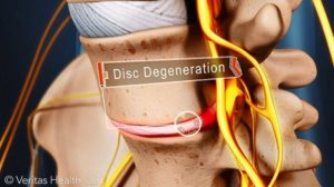 Дегенерация на диск – причина за ишиас.