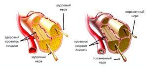 Притока на кръв и нервите в здрав човек и при полиневропатия.