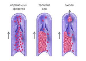 Венозна тромбоза.