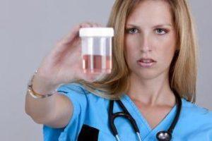 Наличието на кръв в урината в медицината се нарича хематурия.