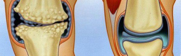 Коксартроза - патология, при която се получава деформация на ставите.