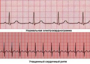 Нормална електрокардиограма и електрокардиограма при сърцебиене.