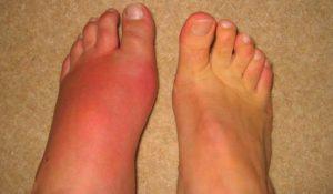 Подуване на краката при подагра