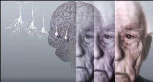 Деменция и Алцхаймер.