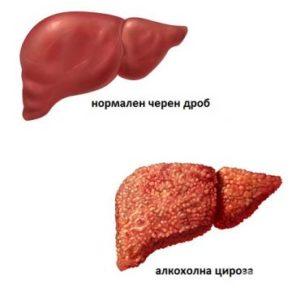 Алкохолна цироза на черния дроб