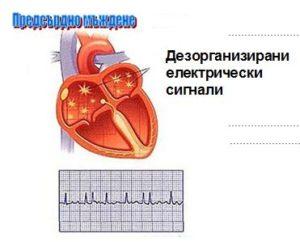 Предсърдно мъждене – дезорганизирани електрически сигнали.