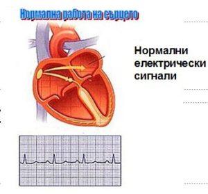 Нормална работа на сърцето – нормални електрически сигнали.
