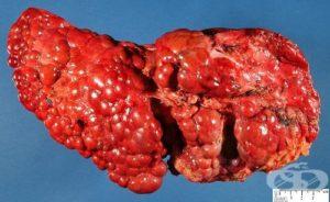 Друга неуточнена цироза на черния дроб