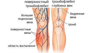 Повърхностният тромбофлебит се разпознава лесно.