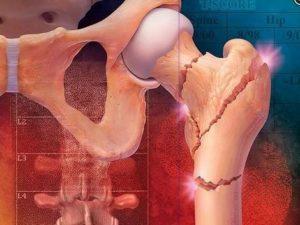 Фрактура на кост с остеопороза