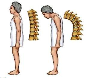 Изкривявания на гръбначния стълб при остеопороза