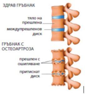 Здрав гръбнак и гръбнак с остеопороза