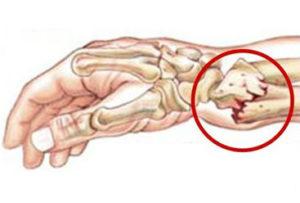 Фрактура на китката вследствие на остеопороза