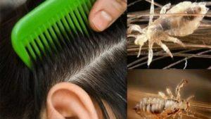 Въшки в косите – как да се отървем от тях?