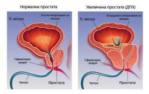 Нормална и уголемена простата.