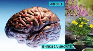 Инсулт – лечение, причини и билки за възстановяване.