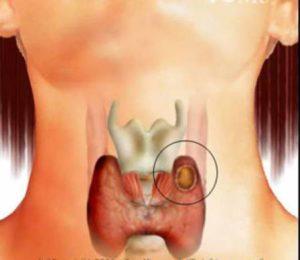 Киста на щитовидната жлеза