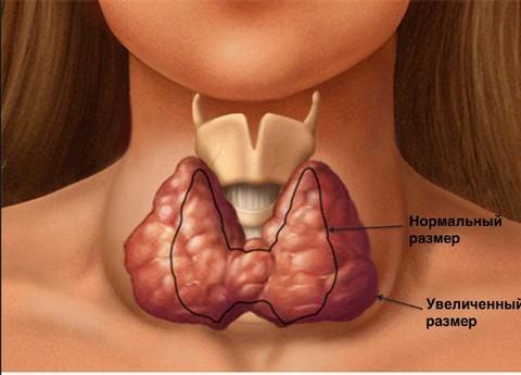 Щитовидна жлеза – нормален и увеличен размер