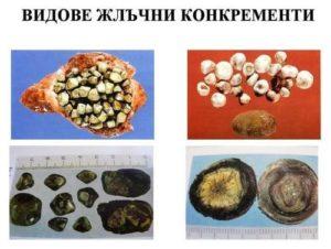 Видове жлъчни камъни