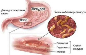 Механизъм на развитие на гастрита, който може да бъде причина за къркорене на червата